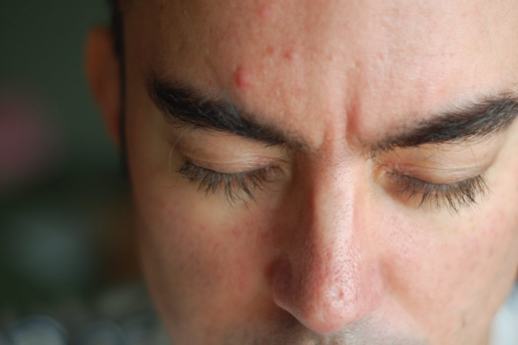 Hormonal Acne in Male