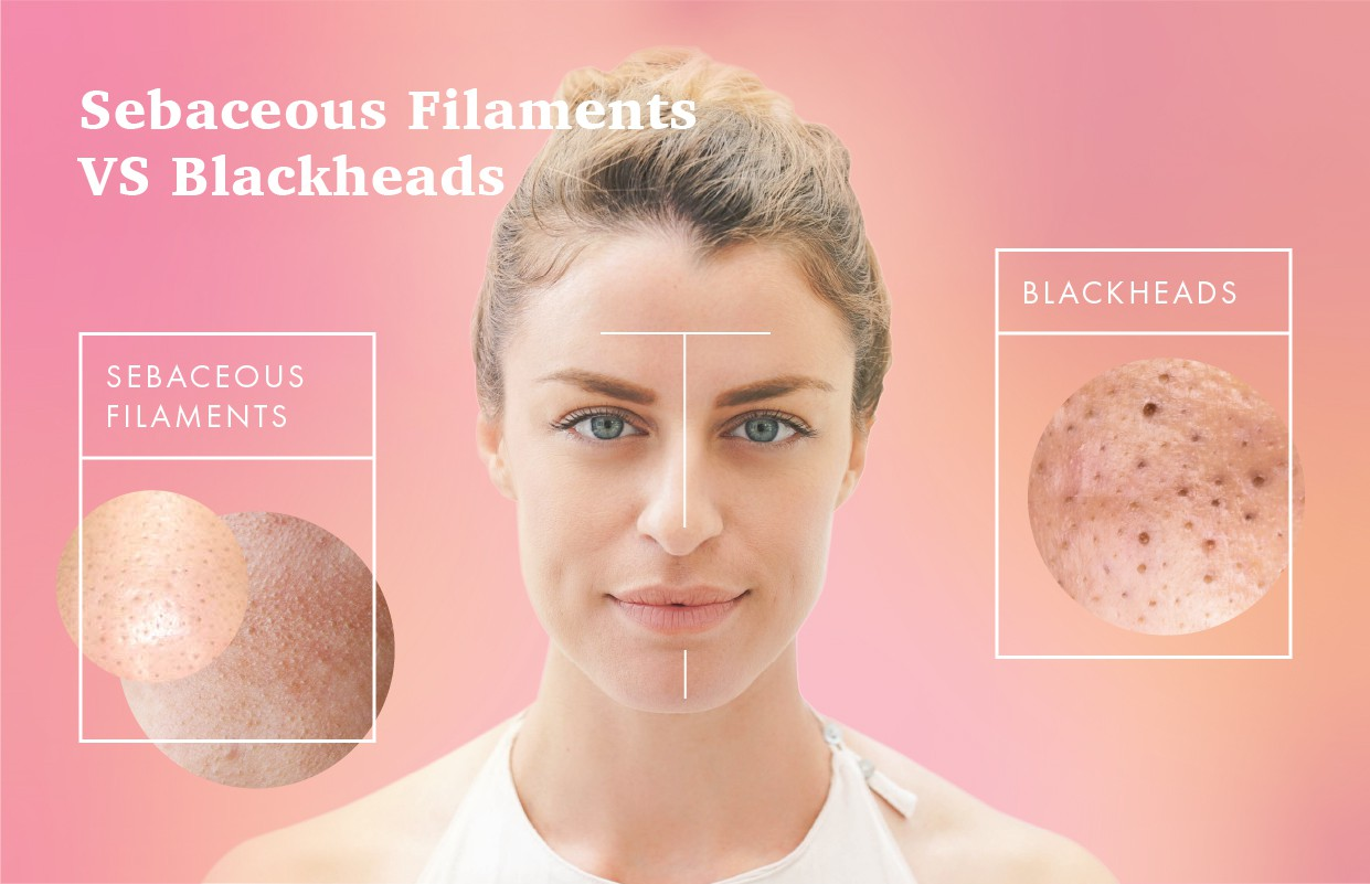 Sebaceous filaments nose